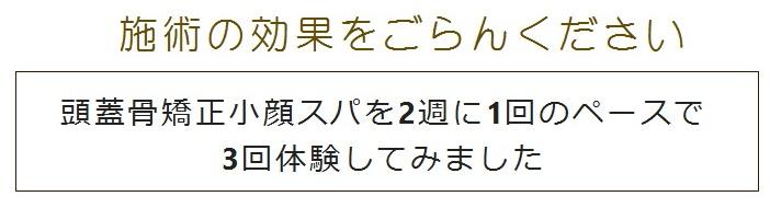 小顔スパホーム3 - コピー